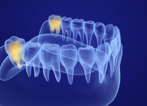 xray of wisdom teeth