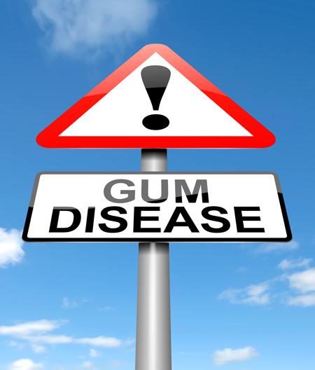 sign stating gum disease